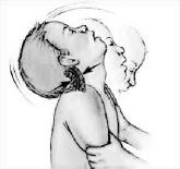 Синдром тряски младенца